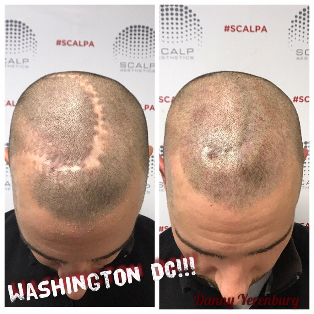 Photo of Scalp Allure - Bethesda, MD, United States. Surgery scar repair