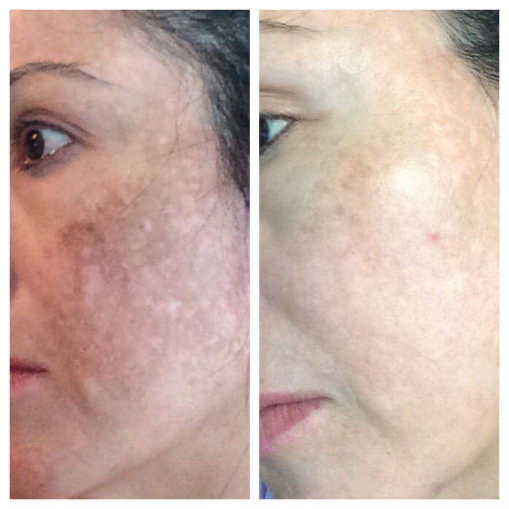 Heenas Threading Skincare 32 Reviews Skin Care 935 N