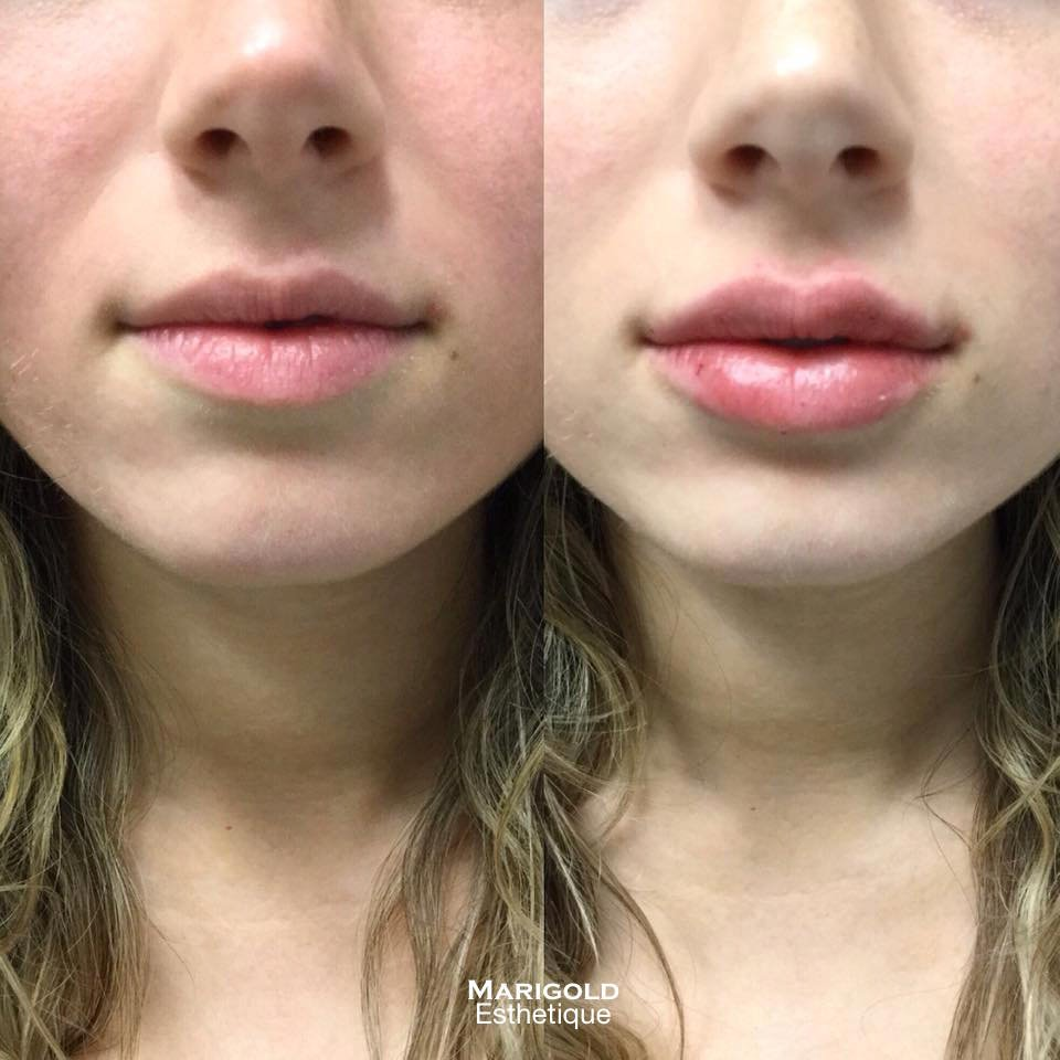 Lip Injections (we use Juvederm, Volbella and Versa for lip