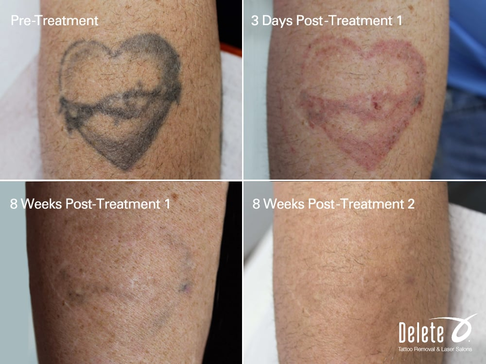 Real results with the advanced picoway tattoo removal for Tattoo removal business