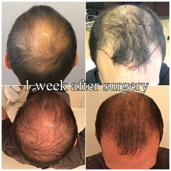 Bosley Hair Restoration 84 Photos 57 Reviews Cosmetic