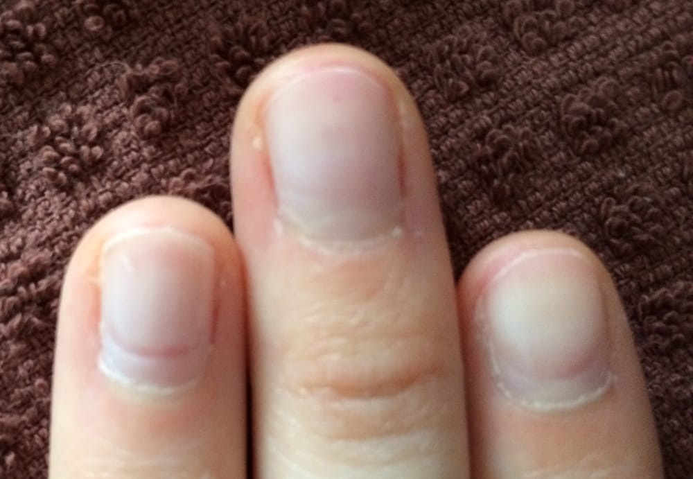 Nails oddly damaged after manicure (red grooves around cuticle area ...