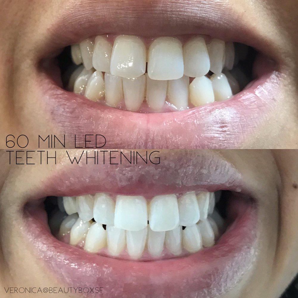 Led Teeth Whitening Yelp