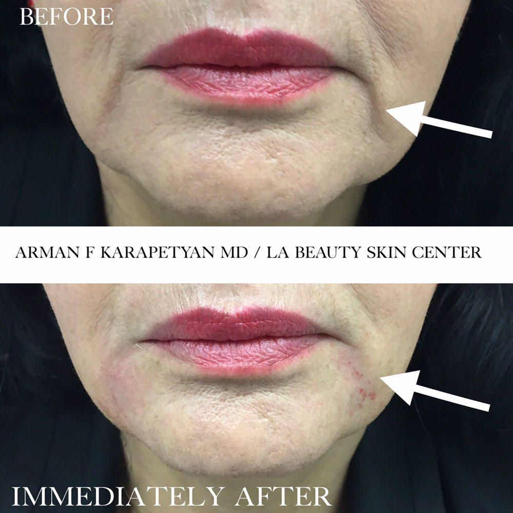 LA Beauty Skin Center