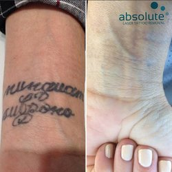 Absolute Laser Tattoo Removal - 79 Photos & 59 Reviews - Tattoo ...