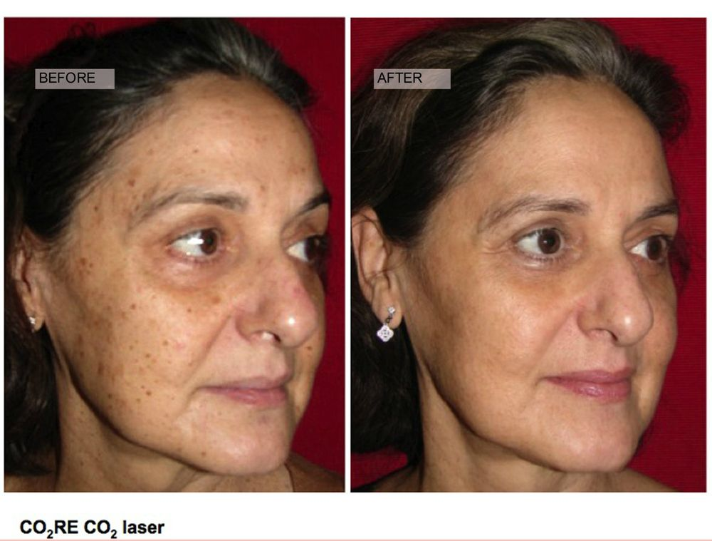 Business. Facial resurfacing before and after solved