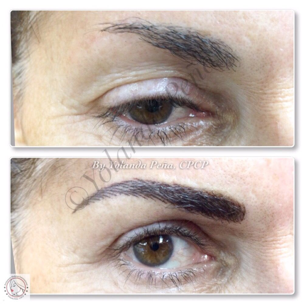 Partial Eyebrow Alopecia A Permanent Hair Simulation In A Color