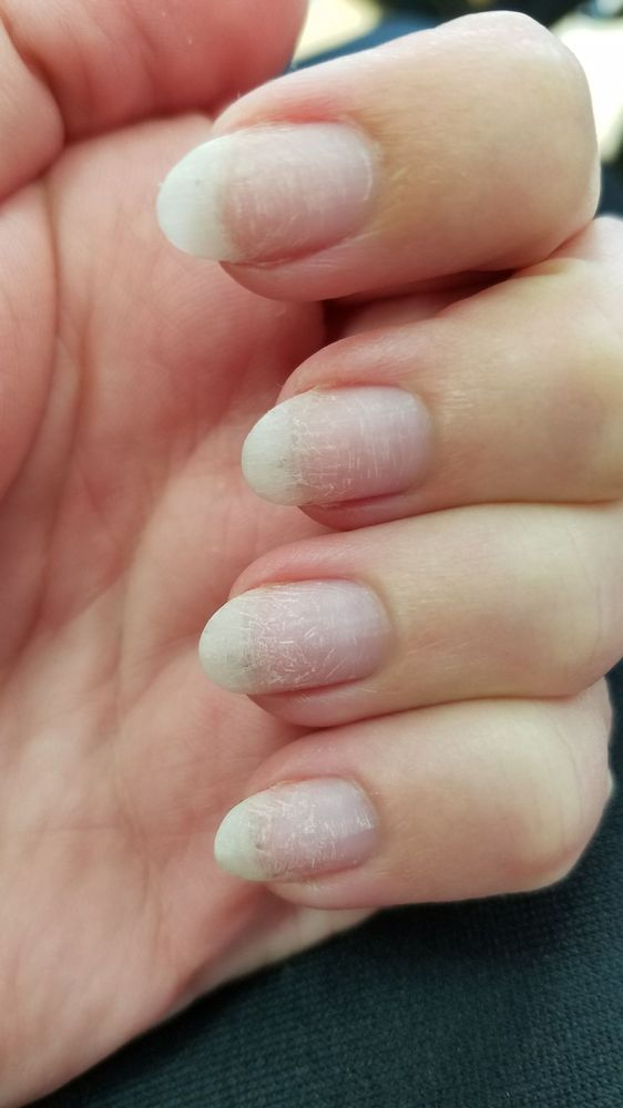 Nails horribly scratched and thin after removing gel polish with a ...