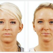 Maryland facial plastic surgeon