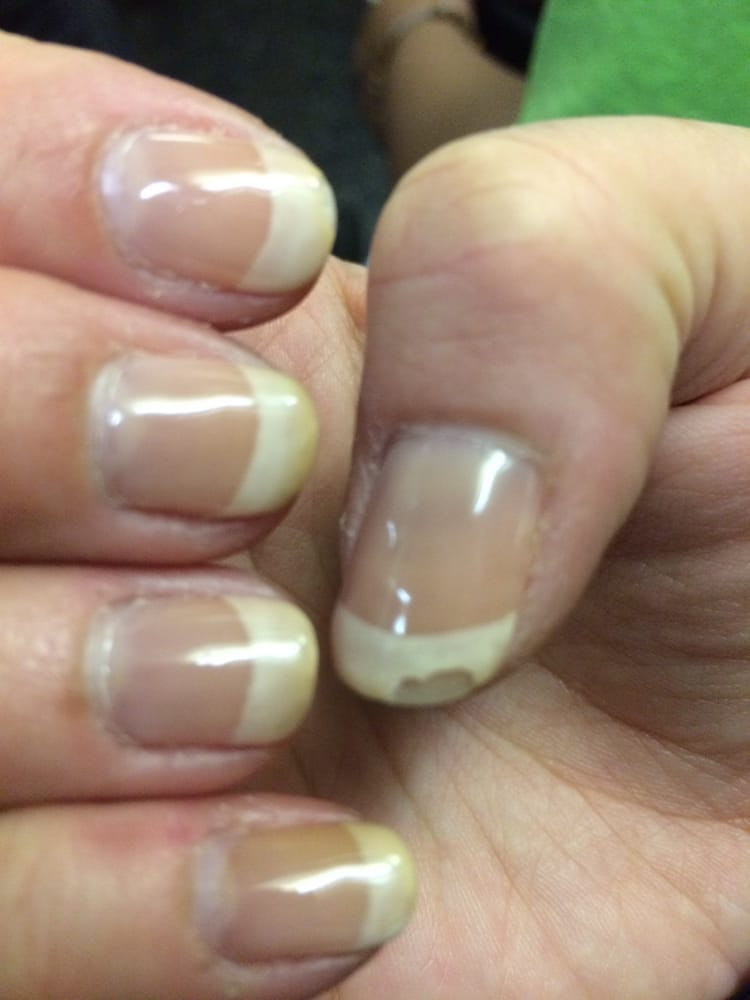 Gel French manicure- the white turned yellow/brown and chipping all ...
