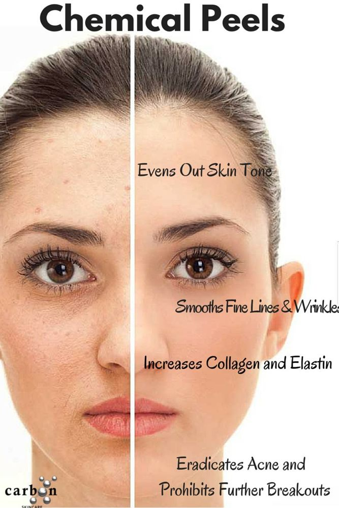 Sophie's Esthetics Face & Body: 231 Clover Dr, Bayfield, CO