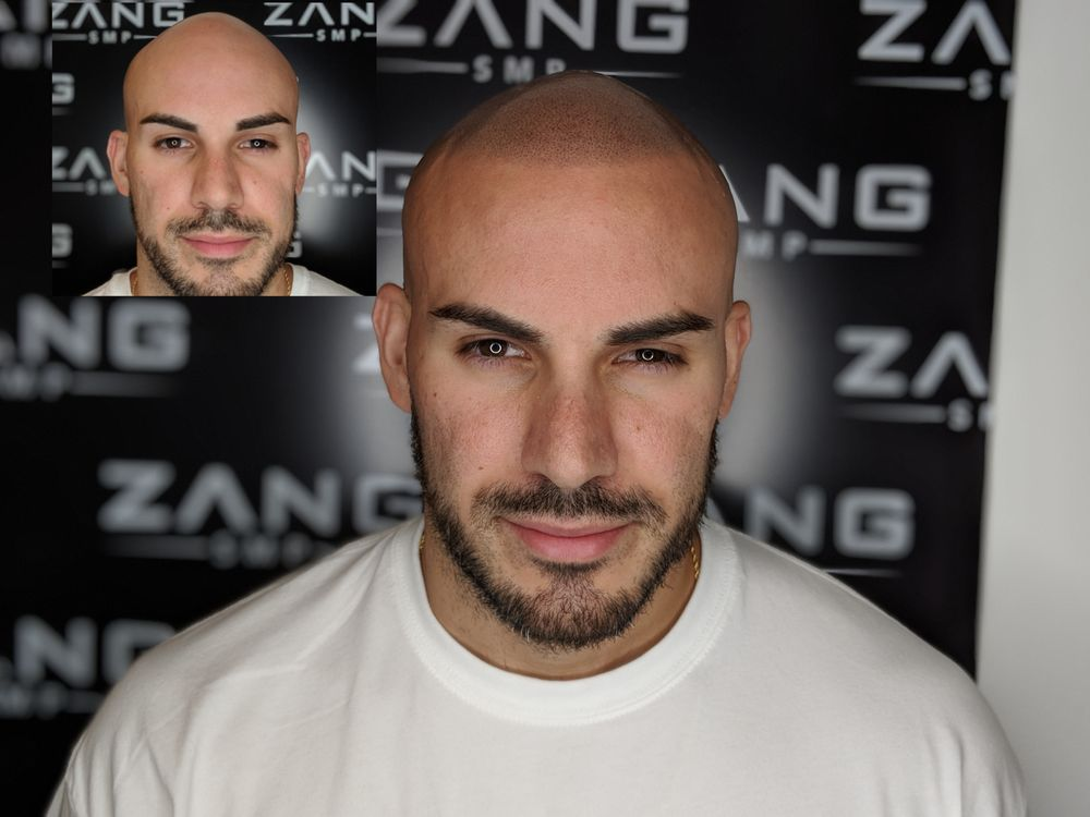Zang SMP - 50 Photos & 19 Reviews - Hair Loss Centers