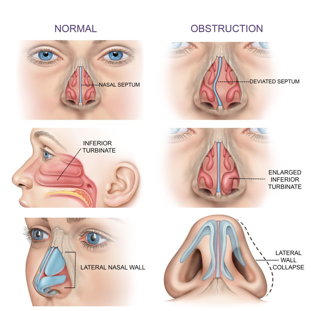 Anatomy of the Nose - Normal & Nasal Obstruction - Yelp