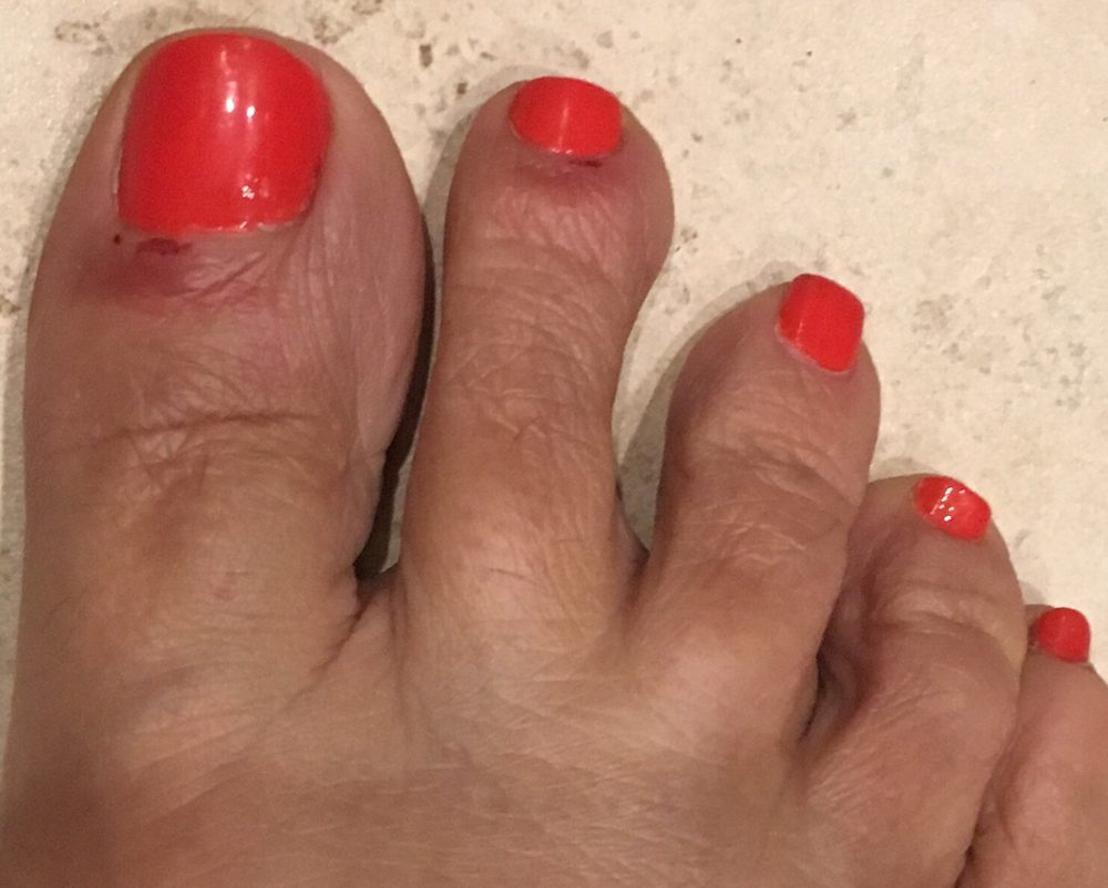 Ended up with a nail bed infection from cuts from pedicure. Will ...