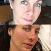 Skin365 - (New) 84 Photos & 85 Reviews - Skin Care - 4201