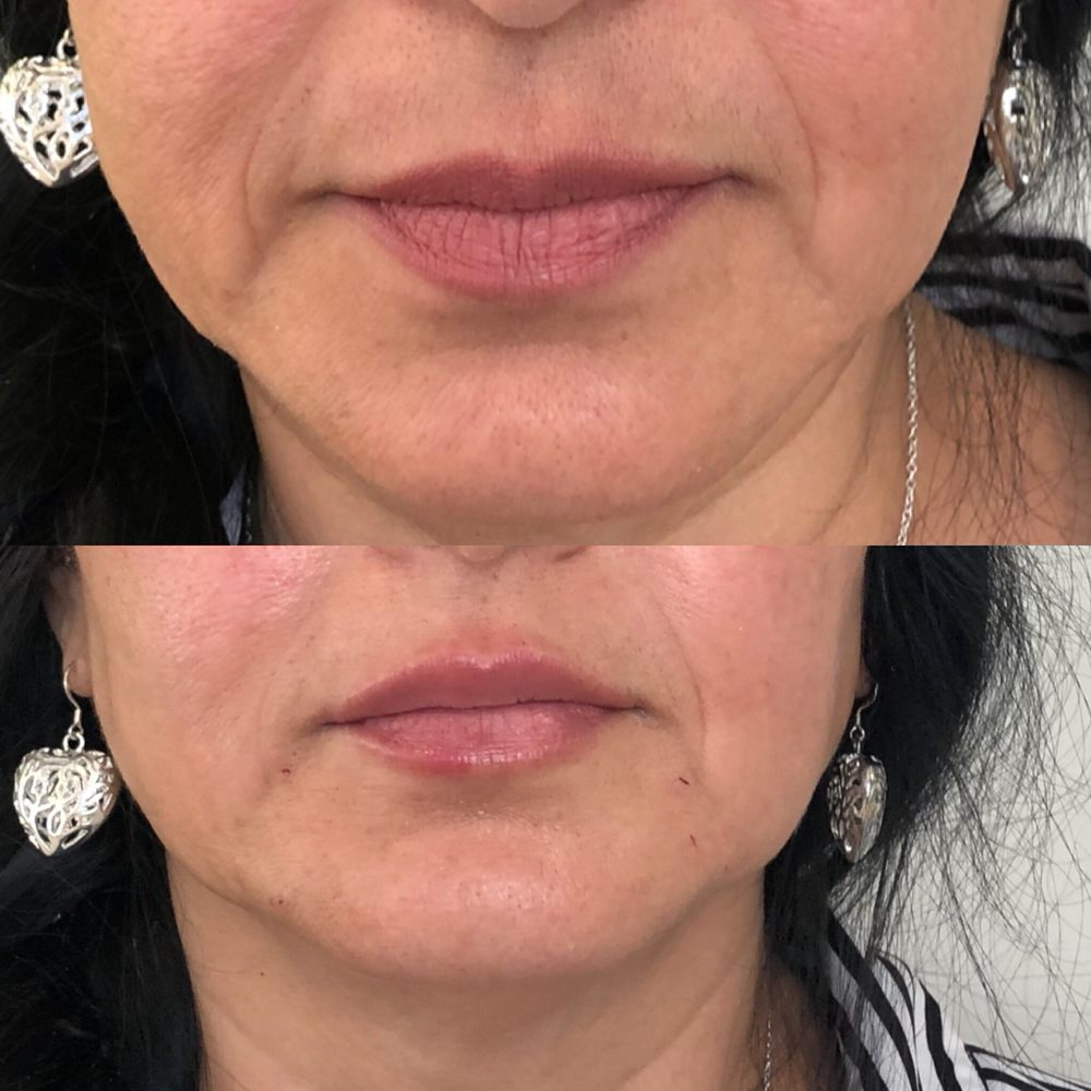 Signature PDO Thread Lift ( before and immediately after) and filler