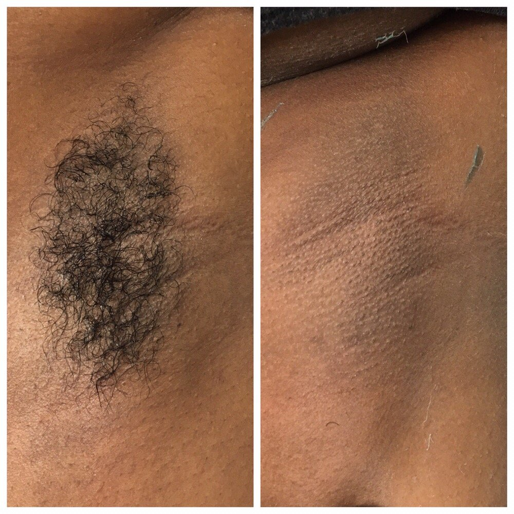 Before and after underarm wax - Yelp