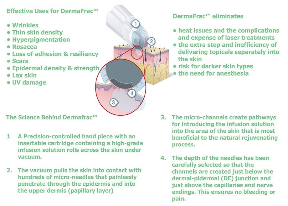Dermaroller Micro Needling - DermaSpark Products Inc.