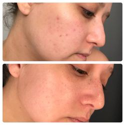 THE BEST 10 Acne Treatment in Scottsdale, AZ - Last Updated