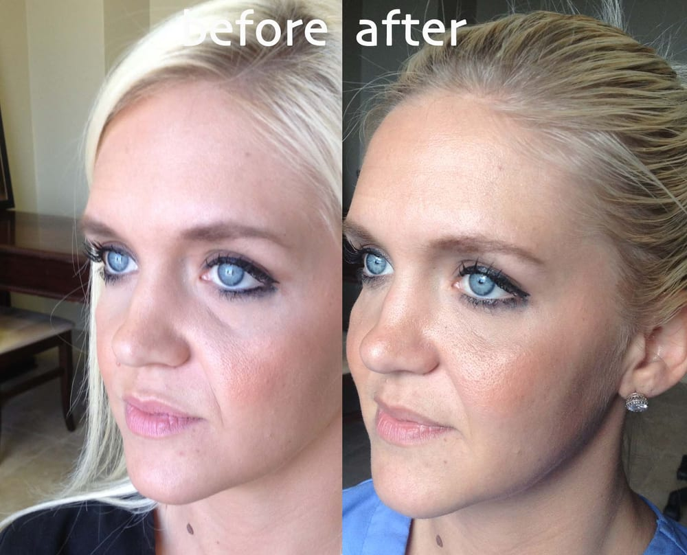 Cheek Lift with Filler - Yelp