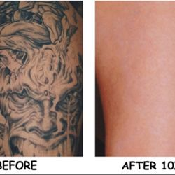 Dallas Tattoo Removal Clinic - 15 Photos - Tattoo Removal - 8204 ...