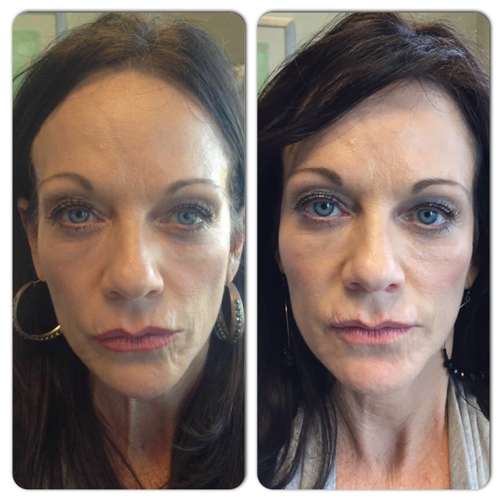 Radiesse for facial volume and symmetry  Botox for forehead