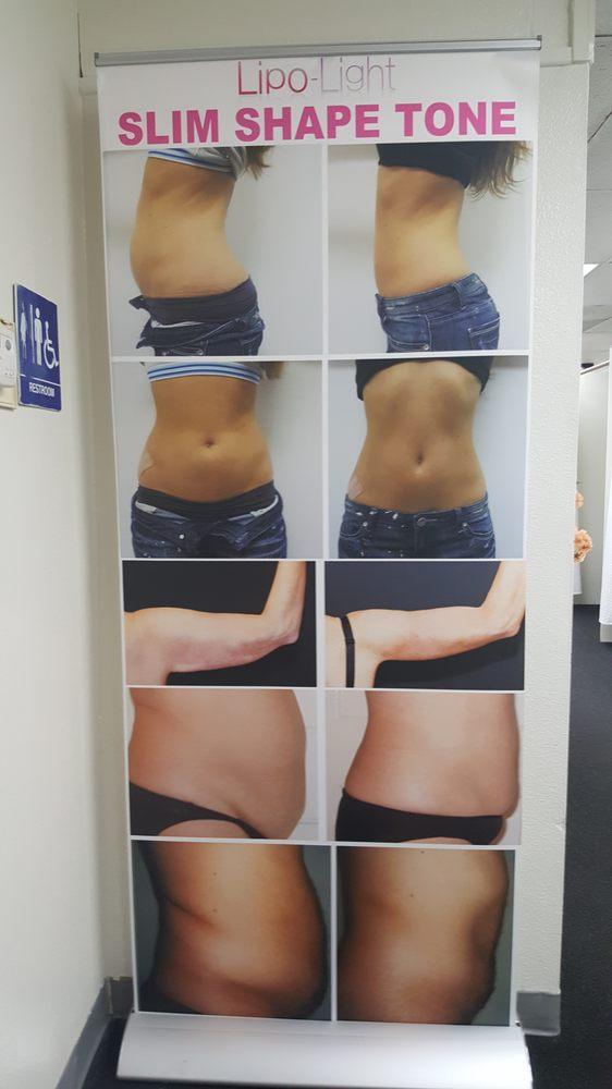 Symonett Weight Loss Clinic 11 Photos Weight Loss Centers 1035