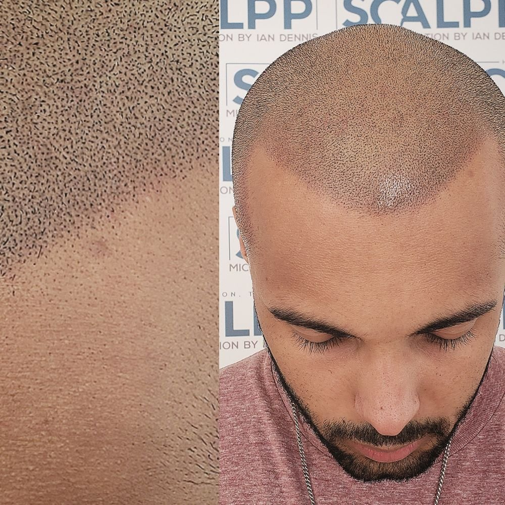 Scalp hair pigmentation Houston Texas zoomed in. Hairloss solution ...