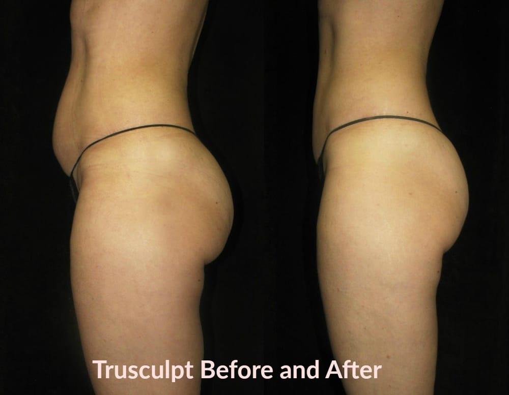 Trusculpt Permanent Fat Reduction Before And After 4