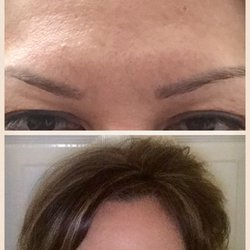 Flawless Fillers - 25 Photos - Medical Spas - 11801 Domain