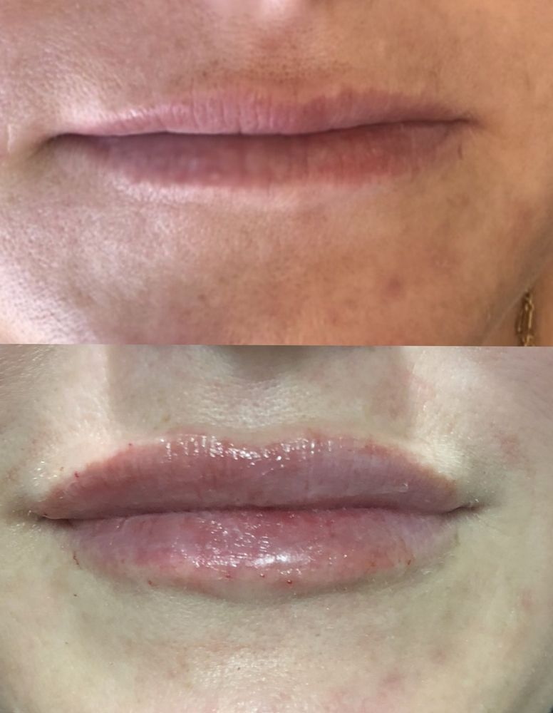 Lip Injections using Juvederm Ultra XC - Yelp