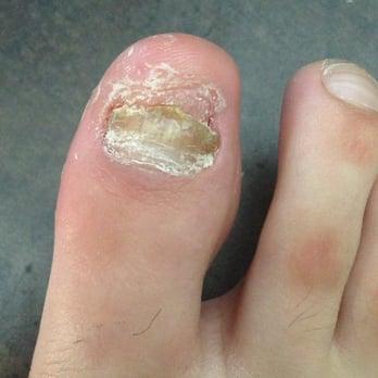 neat feet podiatry laser center closed 17 reviews podiatrists