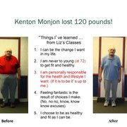 Weight loss surgery in southaven ms