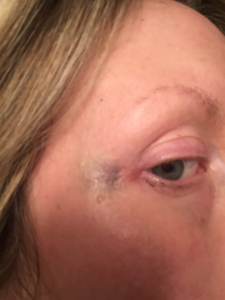 Bruise From Facial Acupuncture Yelp