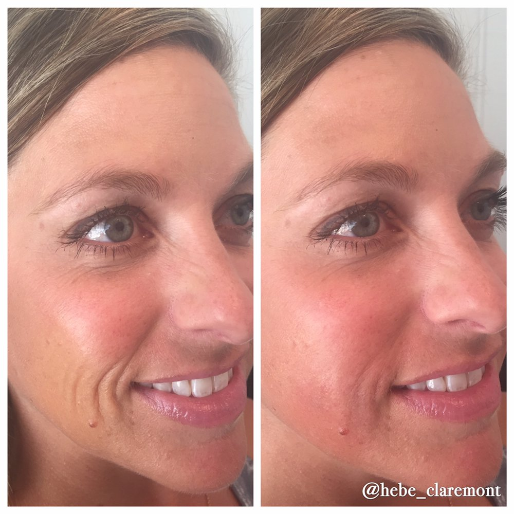 1 ml Restylane for the lateral cheeks, injections by Nicole Smith PA