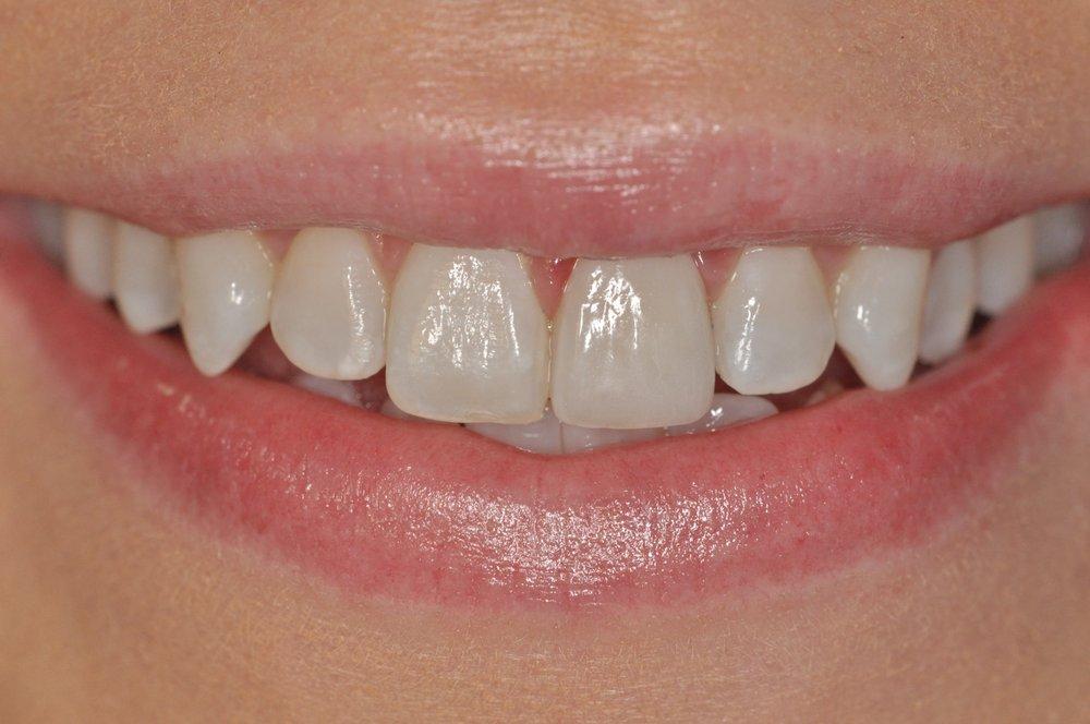 Woodbridge Comfort Dental Care - (New) 16 Photos & 10