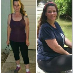 Blue Tree Health Medical Weight Loss Body Contouring 19 Photos