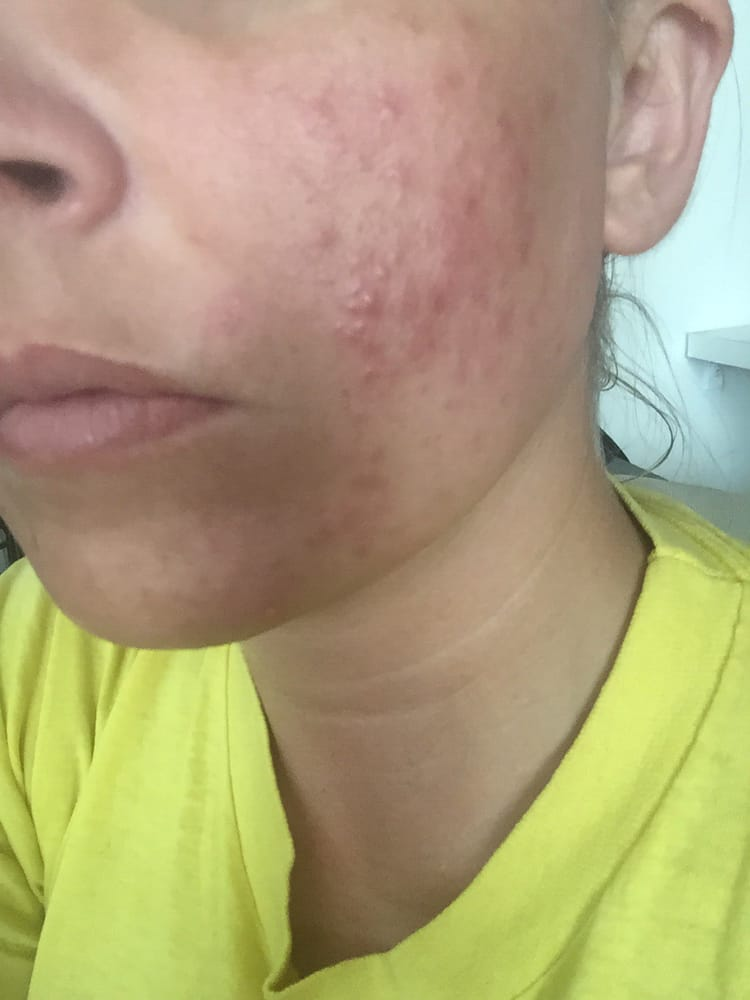 Facial rash after waxing