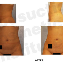 Liposuction And Cosmetic Surgery Institute - 53 Photos & 46