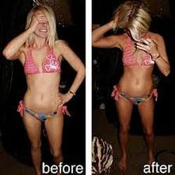 how to get rid of blotchy spray tan