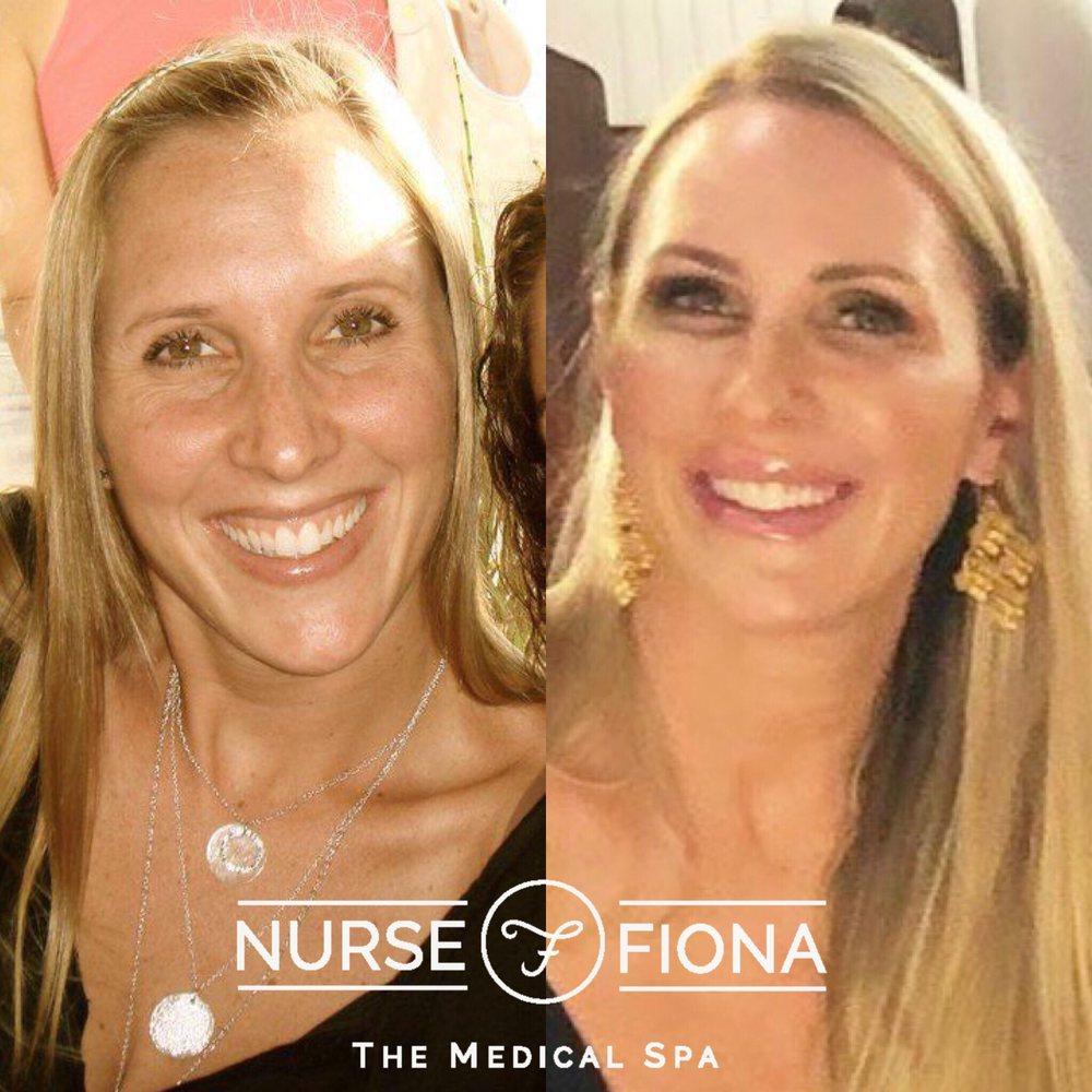 Nurse Fiona Medical Spa - 21 Photos & 26 Reviews - Medical