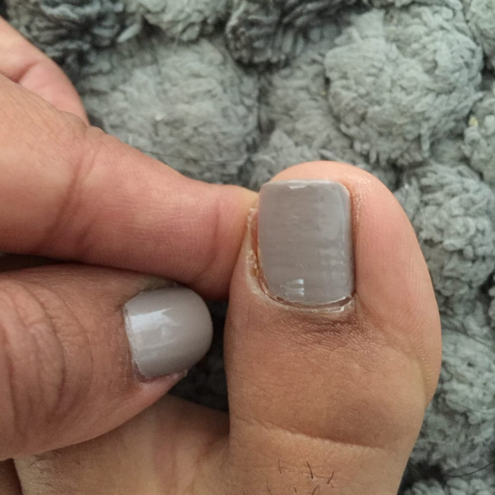 Cuticle infection - Yelp