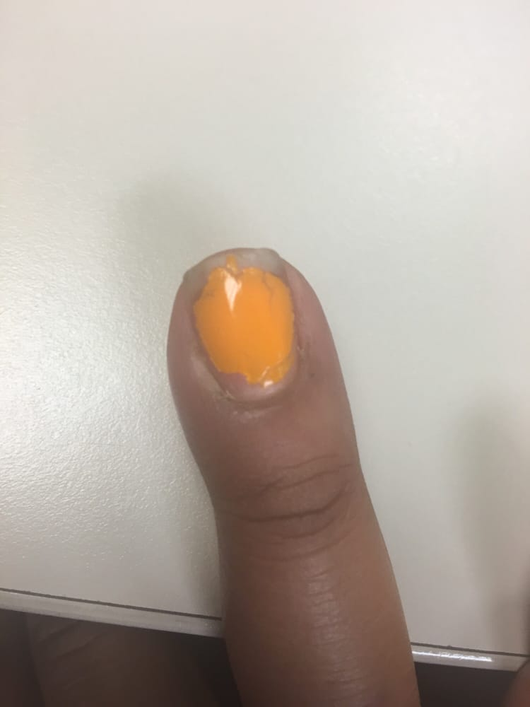 Inflamed cuticle with puss accumulation . - Yelp
