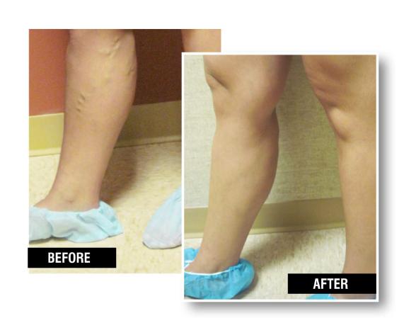 Endovenous Laser Therapy(EVLT) removes swollen varicose