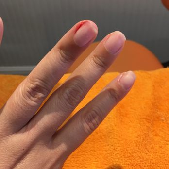 how to get rid of red sore cuticles