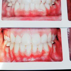 Lollipop Pediatric Dentistry 26 Photos Amp 22 Reviews