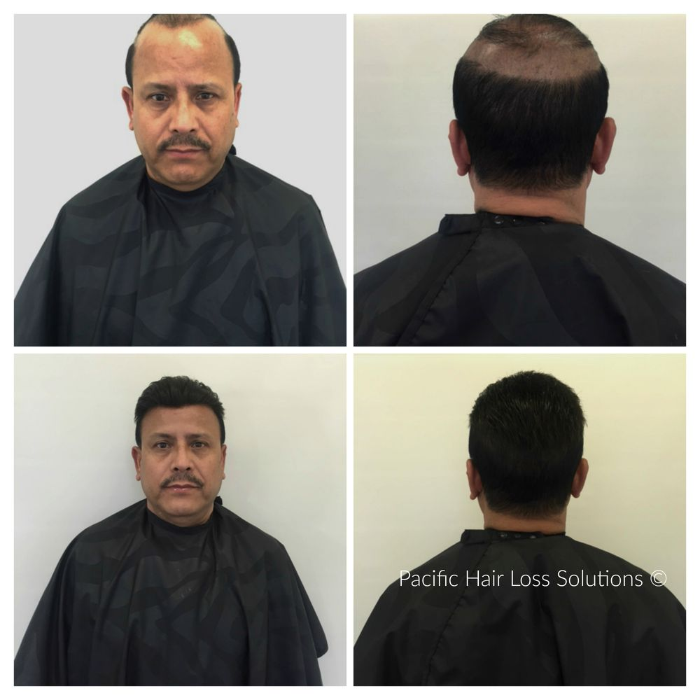 Lace Front Hair Piece System For Man Suffering From Male