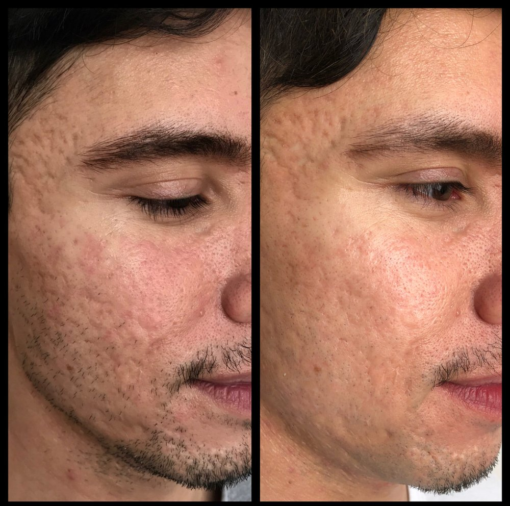 Before and after 2 treatments microneedling with PRP for acne scars