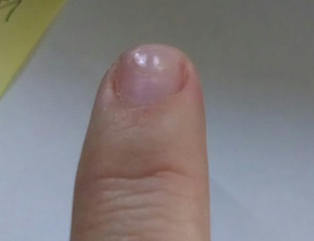 See the dents from grinding down my nails repeatedly to remove the ...