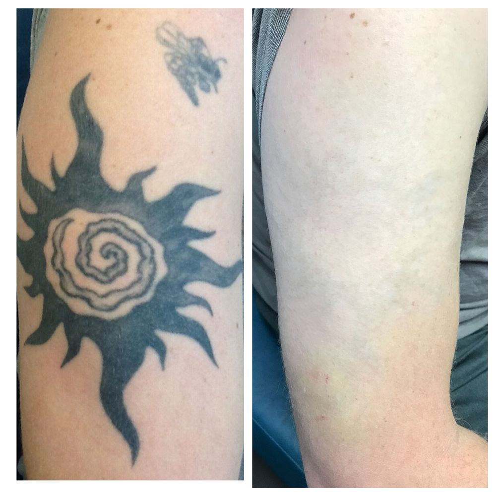Laser tattoo removal - Yelp